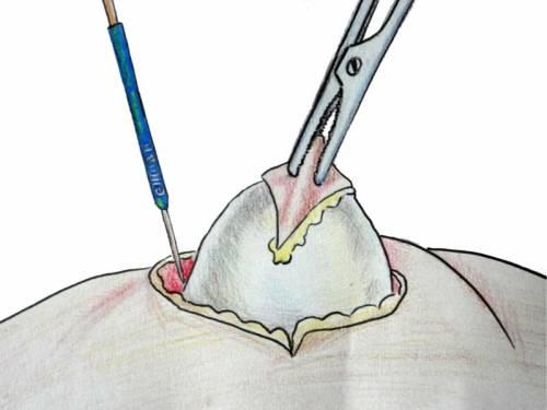 Хирургическое удаление жировиков