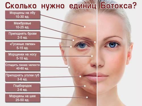 Количество ботокса на разные зоны лица