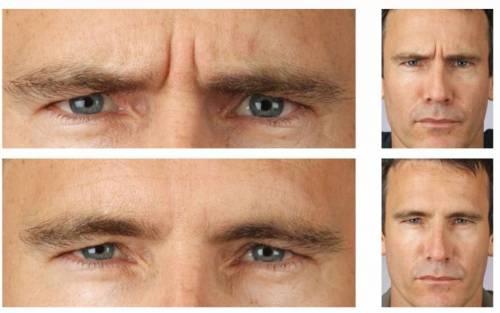 Лицо до укола ботокса и после