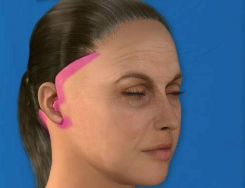 Места проколов при эндоскопической подтяжке лица