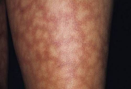 Сетчатые высыпания на коже