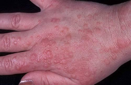 Экссудативная сыпь
