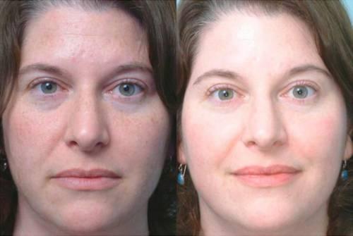 До и после процедуры пилинга