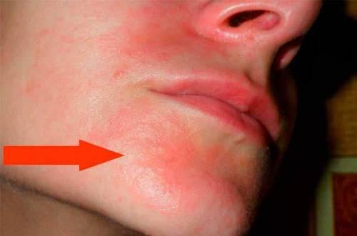Покраснение в нижней части лица