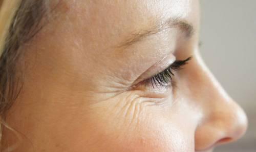 Морщинки вокруг глаз