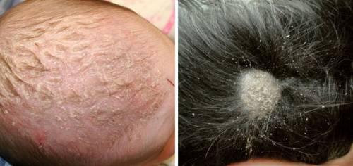 Заболевания кожи головы у ребенка и взрослого