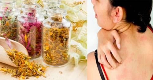 Лечение кожного зуда лекарственными травами