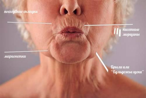 Виды морщин вокруг рта