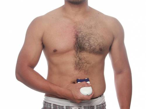 Мужчина удаляет волосы на теле