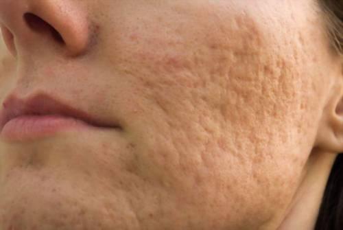Неровная кожа на лице