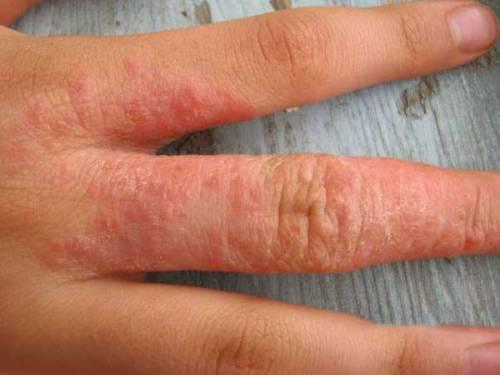 Сыпь между пальцами