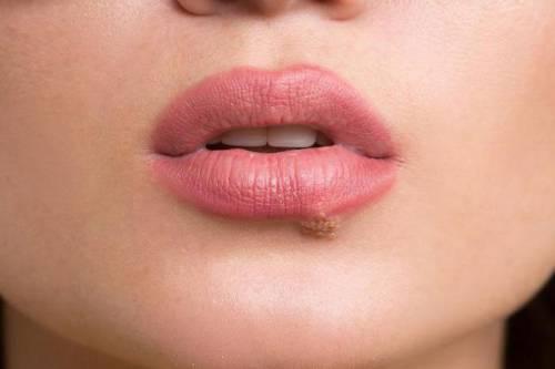 Пузырьки на нижней губе