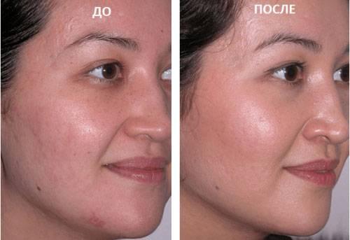 Лицо до салонных процедур и после