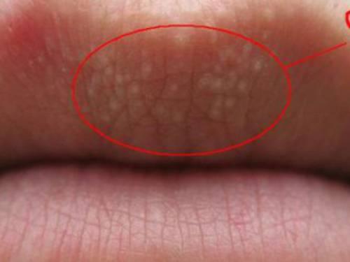 Белая сыпь на губе