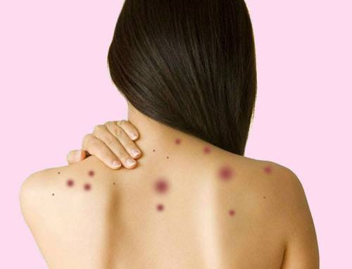 Сыпь на плечах и спине