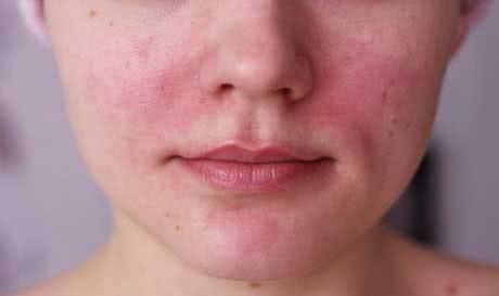 Сосуды на лице