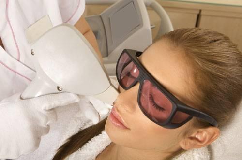 Лазерное лечение купероза