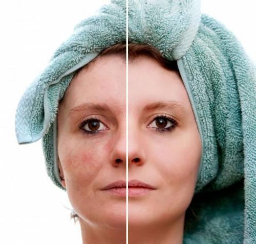 До и после лечения купероза