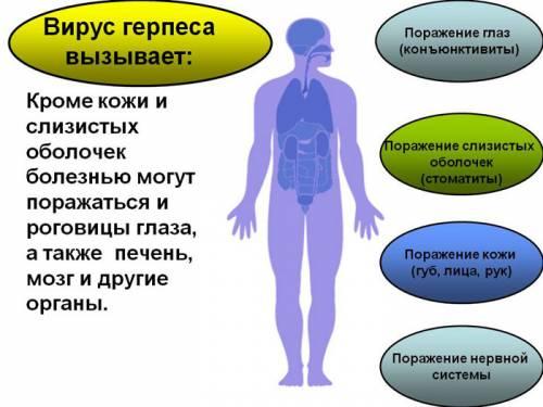 Зоны поражения вируса герпеса