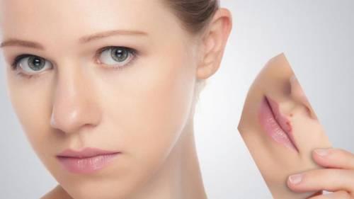 Профилактика герпеса на губах