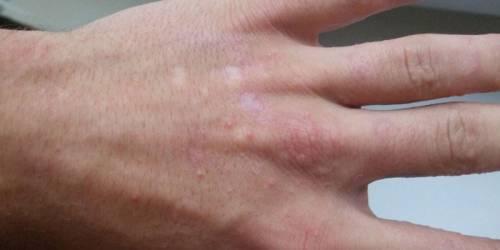 Сыпь между пальцев