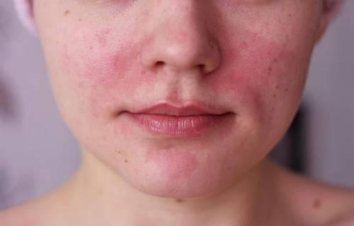 Высыпания на лице