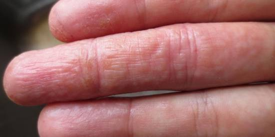 руки с пузырьками