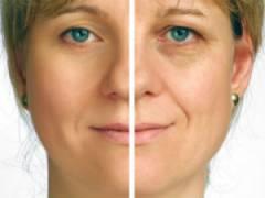 До и после применения средства от морщин