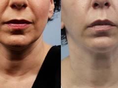 Лицо до процедур по омоложению и после