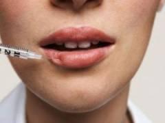 Ботокс в губы