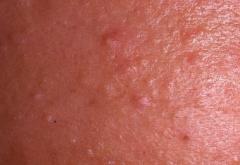 бугорки на коже