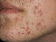 Сыпь на лице при демодекозе