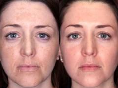 Лицо до применения гликолевой кислоты и после