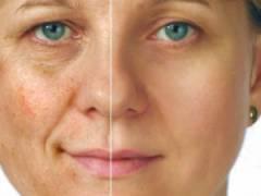 Эффект от глубокого пилинга лица