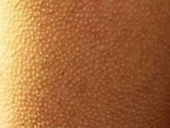 Гусиная кожа