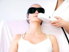 Лазерное удаление волос над верхней губой