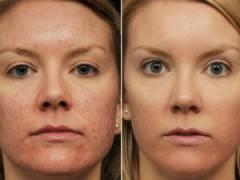 До и после лечения акне