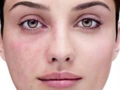 Результат аспириновой маски