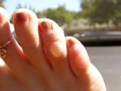 Водянистые мозоли на пальцах ног