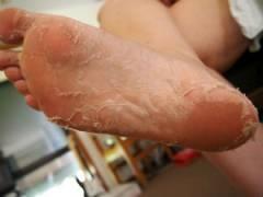 На ступнях слезает кожа