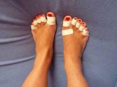 Пальцы ног, заклеенные пластырем