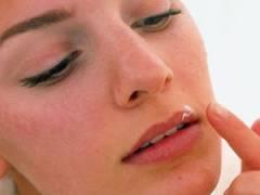 Простуда на лице