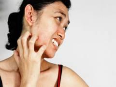 Зуд кожи на лице