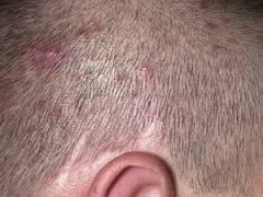 Прыщи в волосах