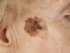 Коричневое пятно на лице