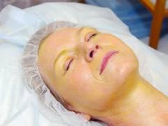 Ретиноловый пилинг для лица