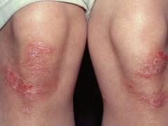 Высыпания на коленях