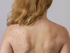 Сыпь на спине и плечах