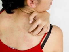 Зуд кожи на спине