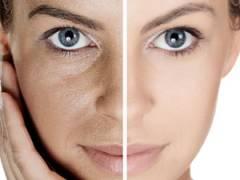 Лицо сужения пор и после